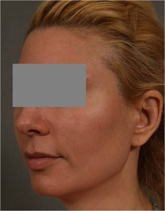 43 Year Old Female with early volume changes to cheeks requesting Juvederm Voluma  after 1361090