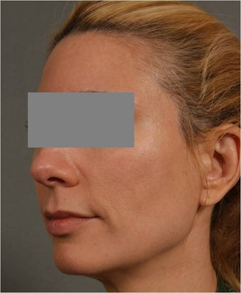 43 Year Old Female with early volume changes to cheeks requesting Juvederm Voluma  before 1361090