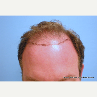 Male with Class VI Hair Loss by Dr. Parsa Mohebi before 3344851