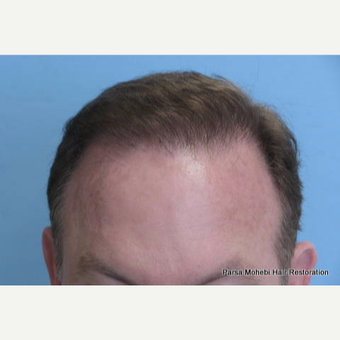 Male with Class VI Hair Loss by Dr. Parsa Mohebi after 3344851