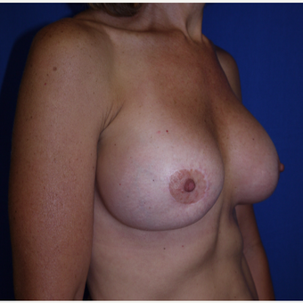 35-44 year old woman treated with Breast Lift with Implants after 3002608