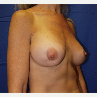 35-44 year old woman treated with Breast Lift with Implants before 3002608