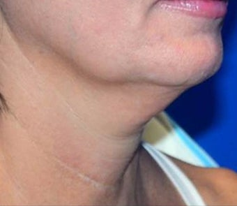 45-54 year old woman treated with PrecisionTX Laser by Cynosure for a  Non-Surgical Neck Lift before 2940644
