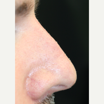 25-34 year old man treated with Non Surgical Nose Job after 3022371