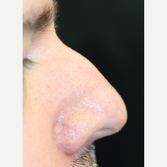 25-34 year old man treated with Non Surgical Nose Job before 3022371