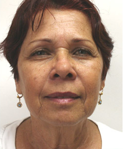 Mini Face Lift with Bilateral Brow Lift before 925641