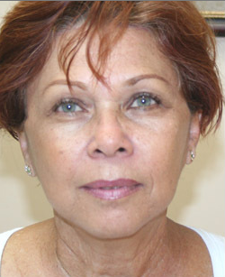 Mini Face Lift with Bilateral Brow Lift after 925641