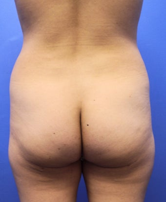 26 Year Old Woman Who Had Brazilian Butt Lift A 26 year old girl underwent a Braziliant Butt Lift procedure.