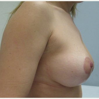 35-44 year old woman treated with Breast Lift after 1566629