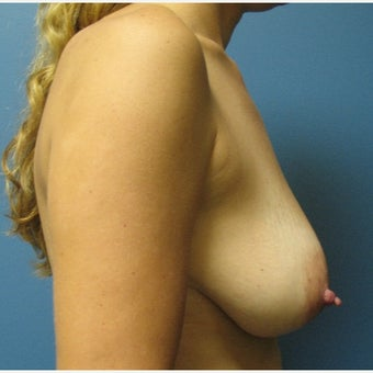 35-44 year old woman treated with Breast Lift before 1566629
