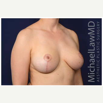 35-44 year old woman treated with Breast Reduction after 3075402