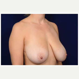 35-44 year old woman treated with Breast Reduction before 3075402