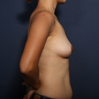 35-44 year old woman treated with Breast Implant Removal (view 2 of 2) after 3617458