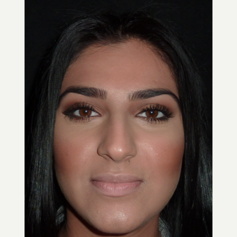 18-24 year old woman treated with Rhinoplasty before 3838809