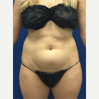 25-34 year old woman treated with Laser Liposuction before 3696995
