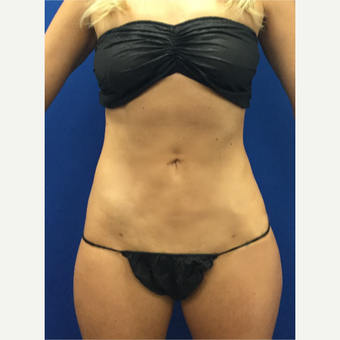 25-34 year old woman treated with Laser Liposuction after 3696995