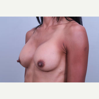 35-44 year old woman treated with Breast Augmentation after 3406408