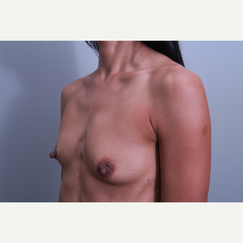 35-44 year old woman treated with Breast Augmentation before 3406408