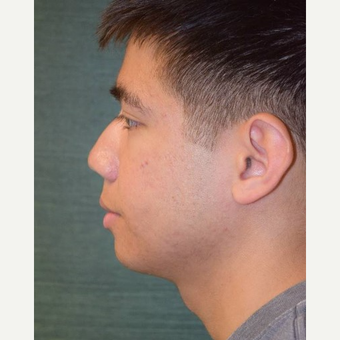 18-24 year old man treated with Rhinoplasty before 3287288
