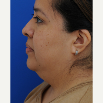 45-54 year old woman treated with Lower Face Lift before 2897993