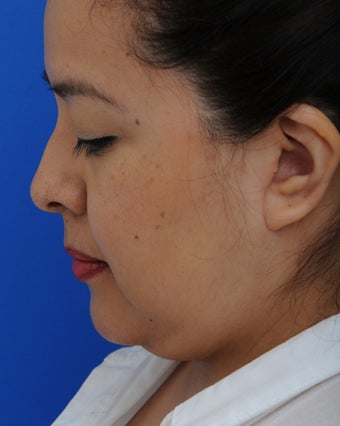 45-54 year old woman treated with Lower Face Lift 2897993