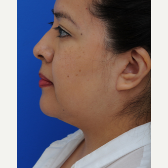 45-54 year old woman treated with Lower Face Lift after 2897993