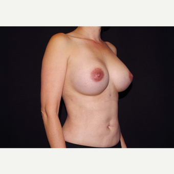35-44 year old woman treated with Breast Implants after 3439968