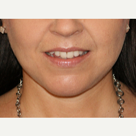 45-54 year old woman treated with Facelift, Necklift after 3065361