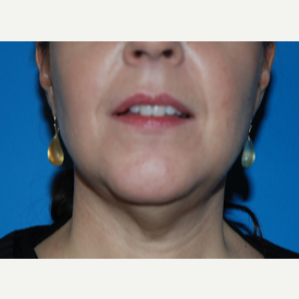 45-54 year old woman treated with Facelift, Necklift before 3065361