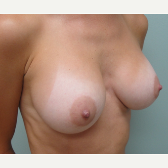 25-34 year old woman treated with Breast Augmentation after 3823087