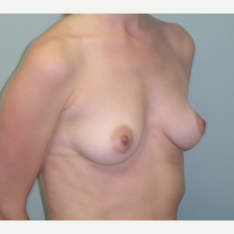 25-34 year old woman treated with Breast Augmentation before 3823087
