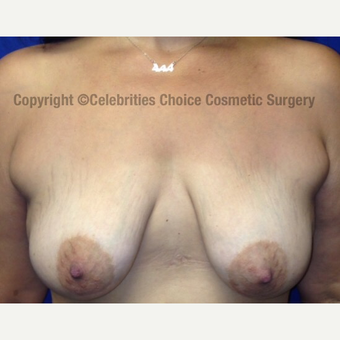 35-44 year old woman treated with Breast Lift with Implants before 3182538