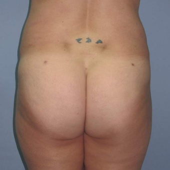 35-44 year old woman treated with Brazilian Butt Lift after 3123155
