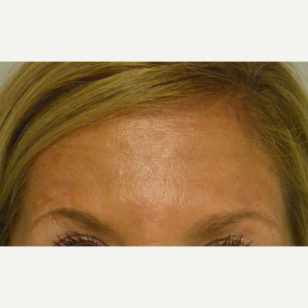 45-54 year old woman treated with Botox who does not like her forehead lines above the brows at rest after 2975686