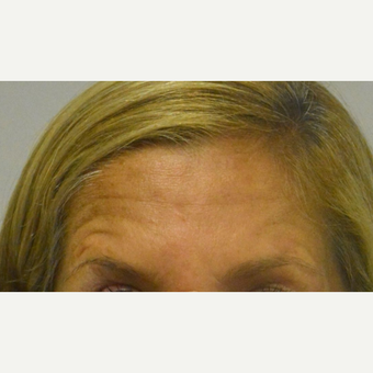 45-54 year old woman treated with Botox who does not like her forehead lines above the brows at rest before 2975686