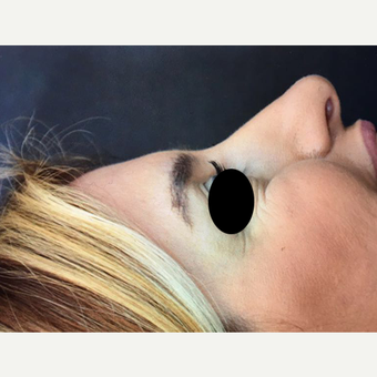 25-34 year old woman treated with Rhinoplasty before 3211776