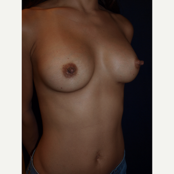 25-34 year old woman treated with Gummy Bear Breast Implants after 3082389