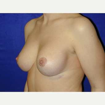 35-44 year old woman treated with Breast Lift with Implants after 3766252