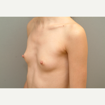 25-34 year old woman treated with Breast Implants before 3732697