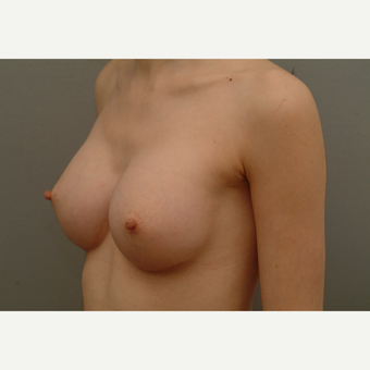 25-34 year old woman treated with Breast Implants after 3732697