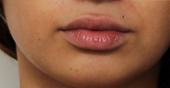 22 year old young woman who wanted fuller lips after 1419551