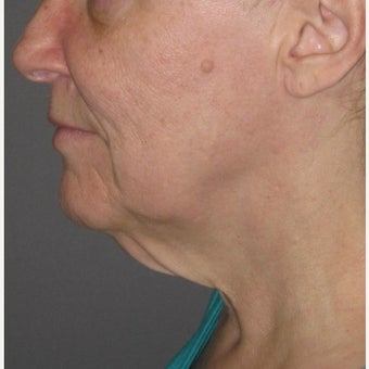 60 year old woman treated with Neck Lift