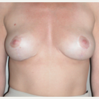 45-54 year old woman treated with Breast Lift after 3153987