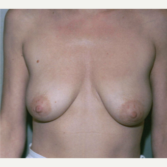 45-54 year old woman treated with Breast Lift before 3153987