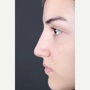 18-24 year old woman treated with Non Surgical Nose Job after 3011300
