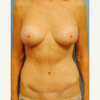 55-64 year old woman treated with Mommy Makeover after 3088103