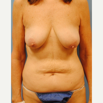 55-64 year old woman treated with Mommy Makeover before 3088103