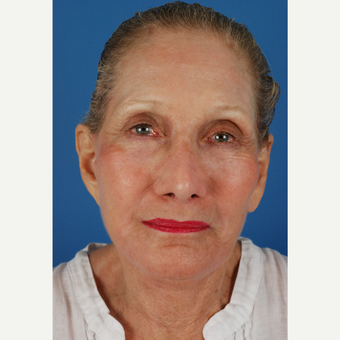 77 year old woman treated with facelift Revision and endoscopic brow lift after 3577879
