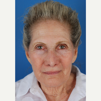77 year old woman treated with facelift Revision and endoscopic brow lift before 3577879