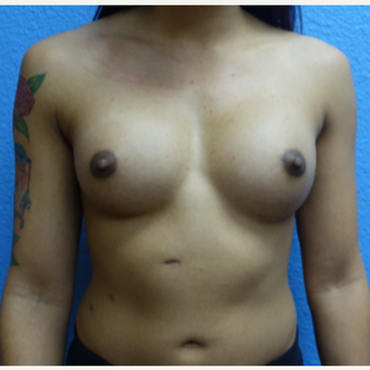 25-34 year old woman treated with Breast Augmentation after 3105189